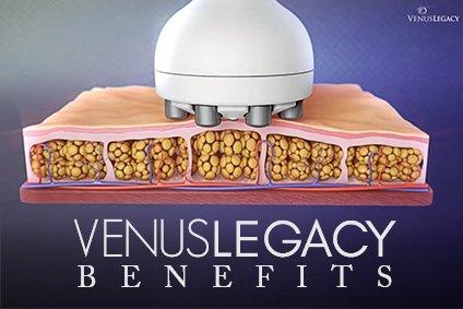 Venus Legacy Benefits